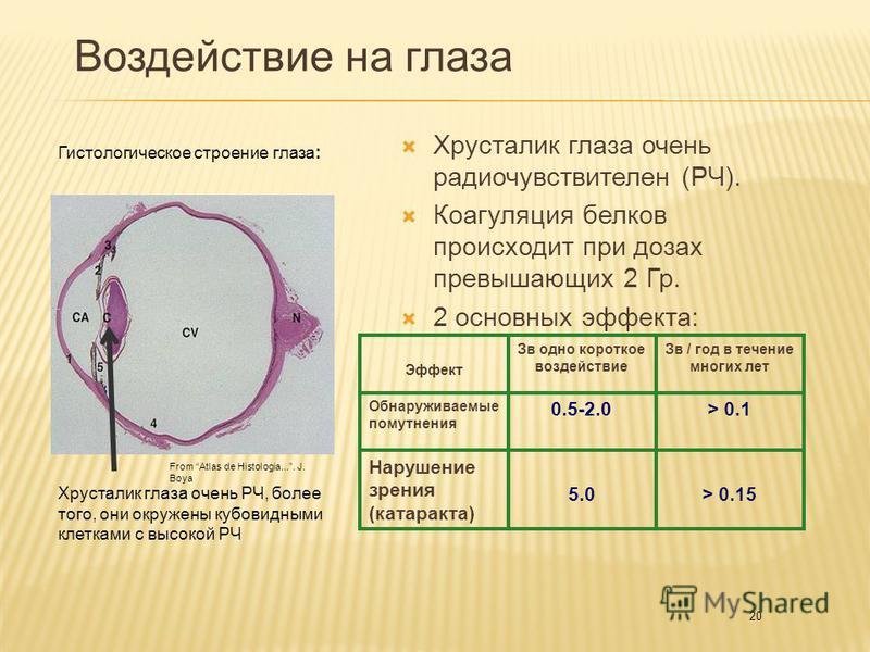 20 Воздействие на глаза Хрусталик глаза очень радио чувствителен (РЧ). Коагуляция белков происходит при дозах превышающих 2 Гр. 2 основных эффекта: From Atlas de Histologia.... J. Boya Гистологическое строение глаза: Хрусталик глаза очень РЧ, более т