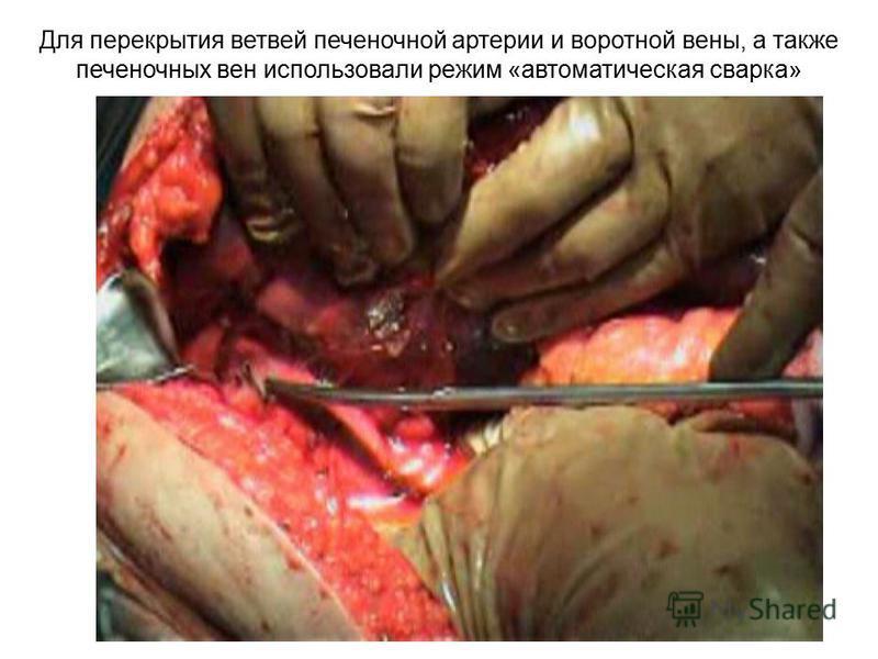 Для перекрытия ветвей печеночной артерии и воротной вены, а также печеночных вен использовали режим «автоматическая сварка»
