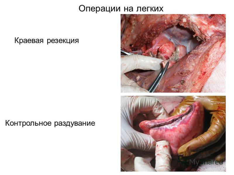 Операции на легких Краевая резекция Контрольное раздувание