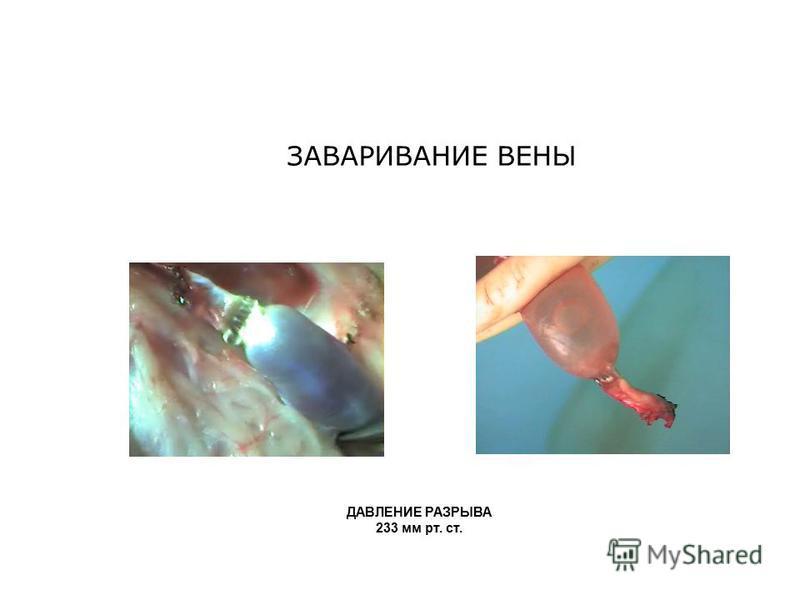 ЗАВАРИВАНИЕ ВЕНЫ ДАВЛЕНИЕ РАЗРЫВА 233 мм рт. ст.
