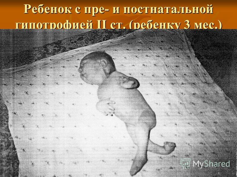 Ребенок с пре- и постнатальной гипотрофией II ст. (ребенку 3 мес.)