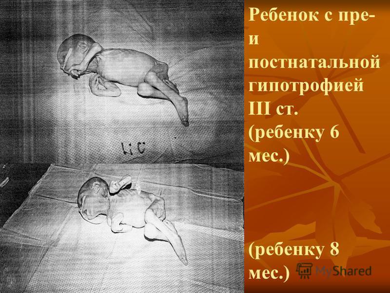 Ребенок с пре- и постнатальной гипотрофией III ст. (ребенку 6 мес.) (ребенку 8 мес.)