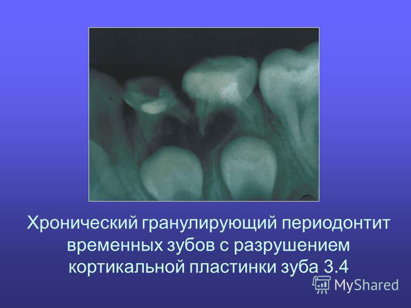Хронический гранулирующий периодонтит временных зубов с разрушением кортикальной пластинки зуба 3.4