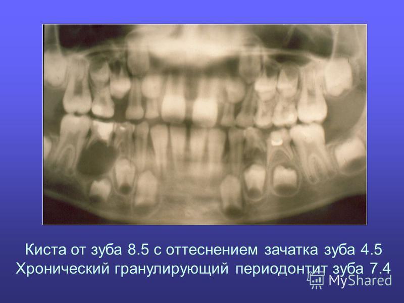 Киста от зуба 8.5 с оттеснением зачатка зуба 4.5 Хронический гранулирующий периодонтит зуба 7.4