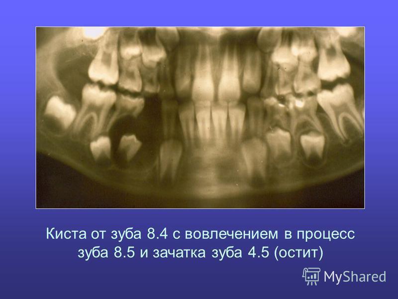 Киста от зуба 8.4 с вовлечением в процесс зуба 8.5 и зачатка зуба 4.5 (остит)