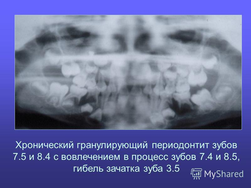 Хронический гранулирующий периодонтит зубов 7.5 и 8.4 с вовлечением в процесс зубов 7.4 и 8.5, гибель зачатка зуба 3.5