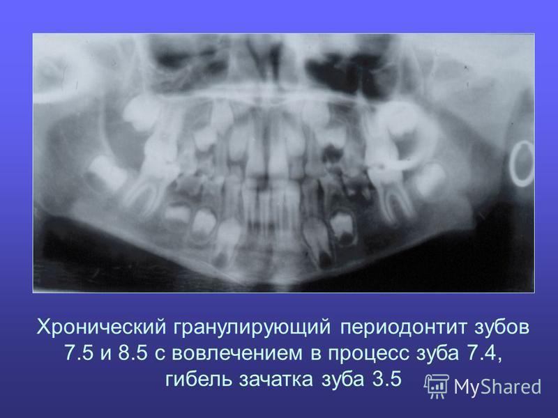 Хронический гранулирующий периодонтит зубов 7.5 и 8.5 с вовлечением в процесс зуба 7.4, гибель зачатка зуба 3.5