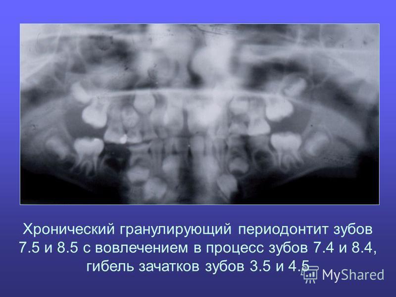 Хронический гранулирующий периодонтит зубов 7.5 и 8.5 с вовлечением в процесс зубов 7.4 и 8.4, гибель зачатков зубов 3.5 и 4.5