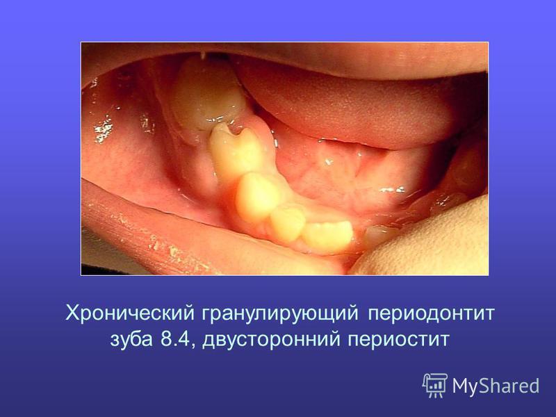 Хронический гранулирующий периодонтит зуба 8.4, двусторонний периостит