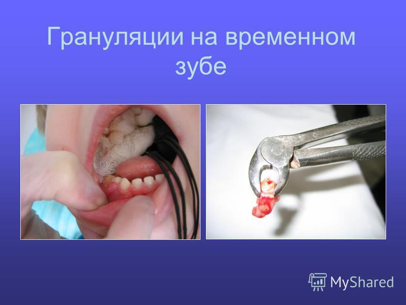 Грануляции на временном зубе