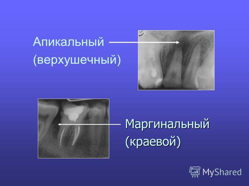Апикальный (верхушечный) Маргинальный (краевой)