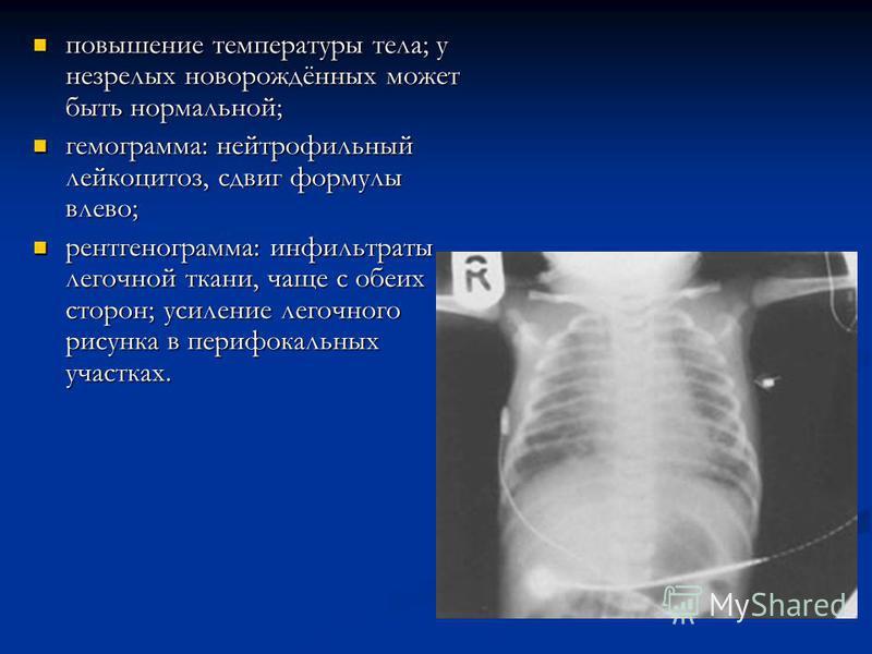 повышение температуры тела; у незрелых новорождённых может быть нормальной; повышение температуры тела; у незрелых новорождённых может быть нормальной; гемограмма: нейтрофильный лейкоцитоз, сдвиг формулы влево; гемограмма: нейтрофильный лейкоцитоз, с