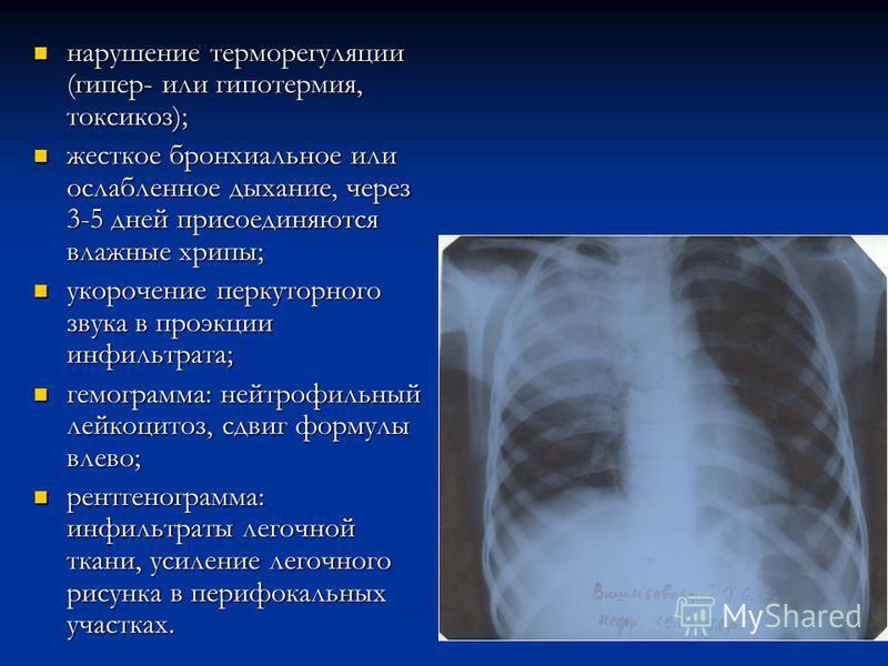 нарушение терморегуляции (гипер- или гипотермия, токсикоз); нарушение терморегуляции (гипер- или гипотермия, токсикоз); жесткое бронхиальное или ослабленное дыхание, через 3-5 дней присоединяются влажные хрипы; жесткое бронхиальное или ослабленное ды