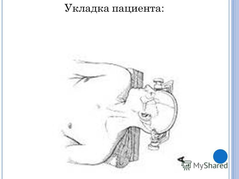 Укладка пациента: