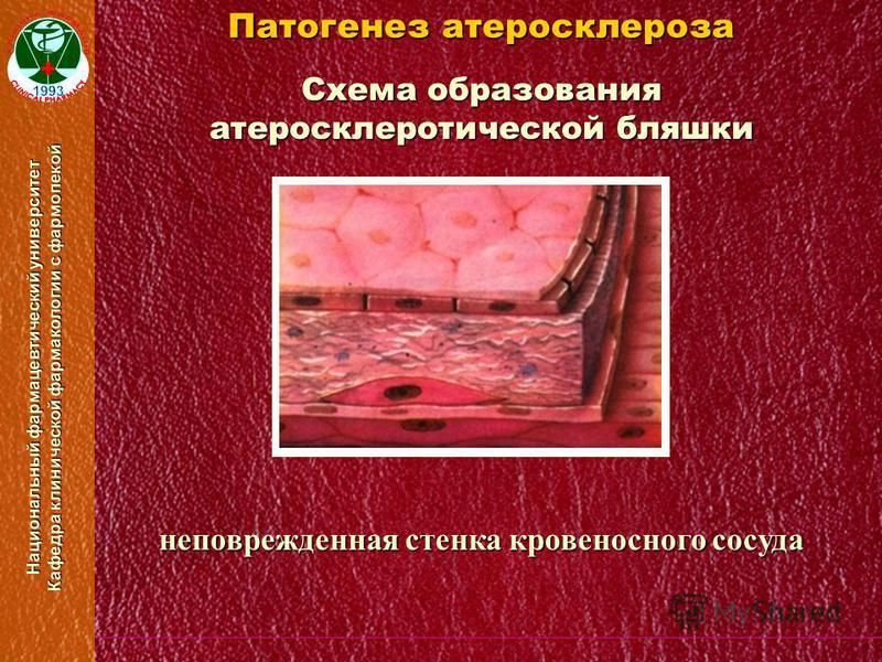 Национальный фармацевтический университет Кафедра клинической фармакологии с фармопекой Схема образования атеросклеротической бляшки Патогенез атеросклероза неповрежденная стенка кровеносного сосуда