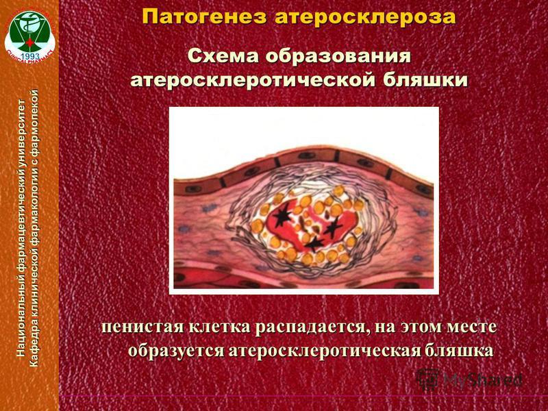 Национальный фармацевтический университет Кафедра клинической фармакологии с фармопекой Схема образования атеросклеротической бляшки Патогенез атеросклероза пенистая клетка распадается, на этом месте образуется атеросклеротическая бляшка
