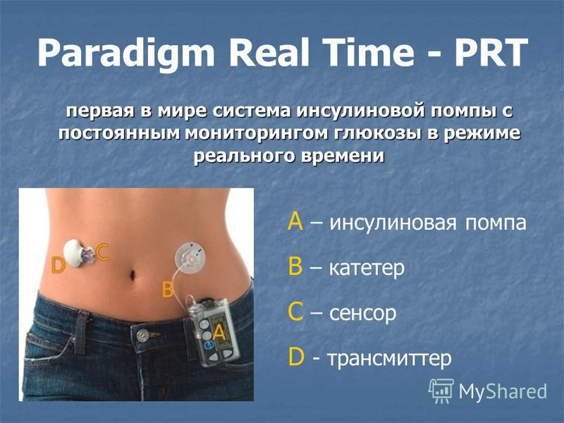 первая в мире система инсулиновой помпы с постоянным мониторингом глюкозы в режиме реального времени А – инсулиновая помпа В – катетер С – сенсор D - трансмиттер Paradigm Real Time - PRT