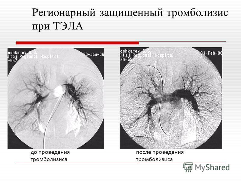 Регионарный защищенный тромболизис при ТЭЛА до проведения тромболизиса после проведения тромболизиса