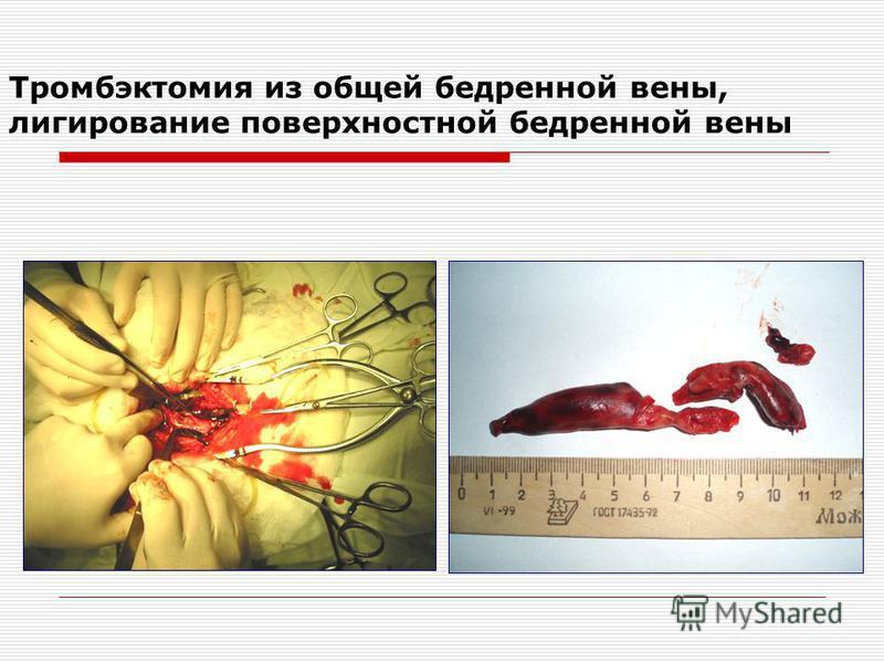 Тромбэктомия из общей бедренной вены, лигирование поверхностной бедренной вены