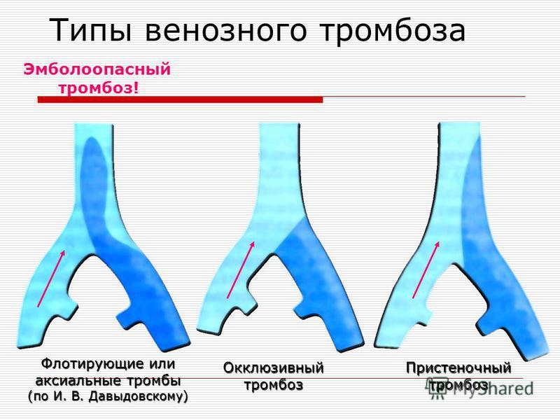 Типы венозного тромбоза Флотирующие или аксиальные тромбы (по И. В. Давыдовскому) Эмболоопасный тромбоз! Окклюзивный тромбоз Пристеночный тромбоз