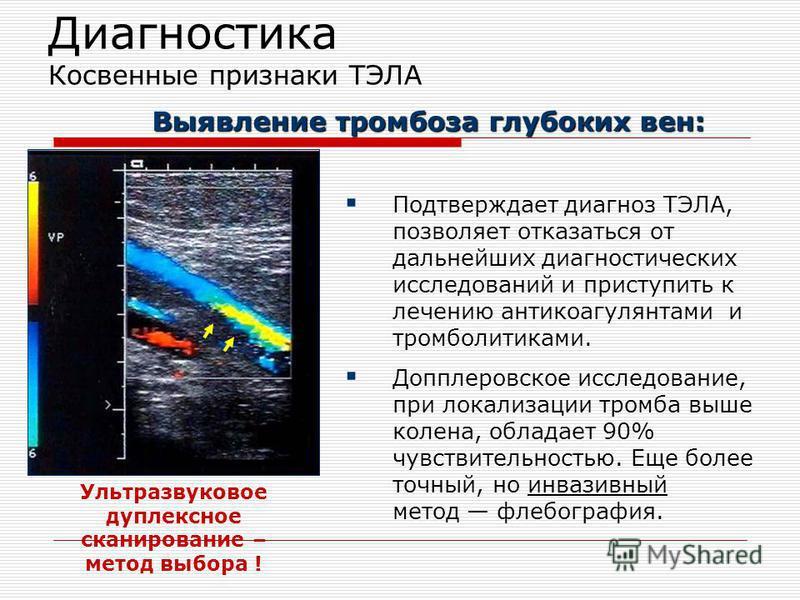 Диагностика Косвенные признаки ТЭЛА Подтверждает диагноз ТЭЛА, позволяет отказаться от дальнейших диагностических исследований и приступить к лечению антикоагулянтами и тромболитиками. Допплеровское исследование, при локализации тромба выше колена, о