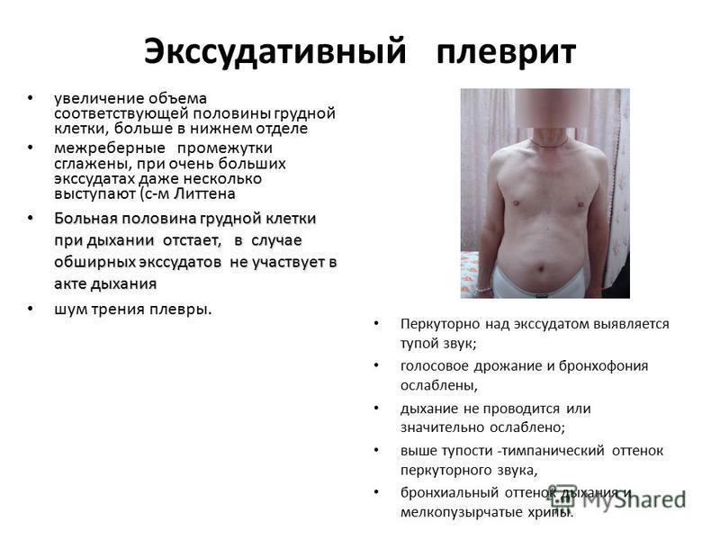 Экссудативный плеврит увеличение объема соответствующей половины грудной клетки, больше в нижнем отделе Л межреберные промежутки сглажены, при очень больших экссудатах даже несколько выступают (с-м Литтена Больная половина грудной клетки при дыхании