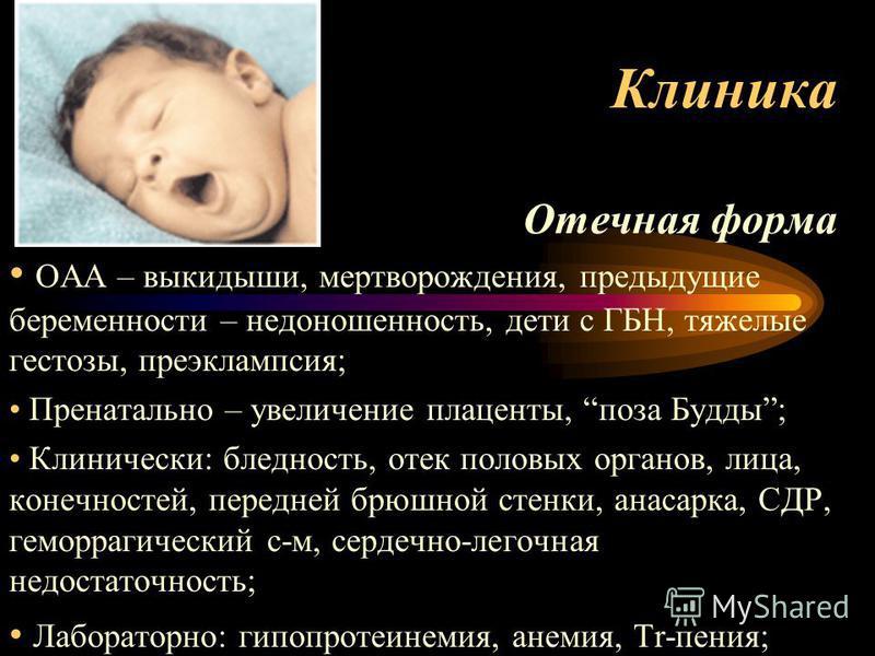 Клиника Отечная форма ОАА – выкидыши, мертворождения, предыдущие беременности – недоношенность, дети с ГБН, тяжелые гестозы, преэклампсия; Пренатально – увеличение плаценты, поза Будды; Клинически: бледность, отек половых органов, лица, конечностей,