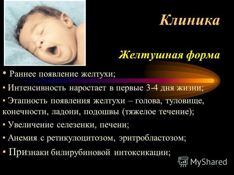 Клиника Желтушная форма Раннее появление желтухи; Интенсивность нарастает в первые 3-4 дня жизни; Этапность появления желтухи – голова, туловище, конечности, ладони, подошвы (тяжелое течение); Увеличение селезенки, печени; Анемия с ретикулоцитозом, э