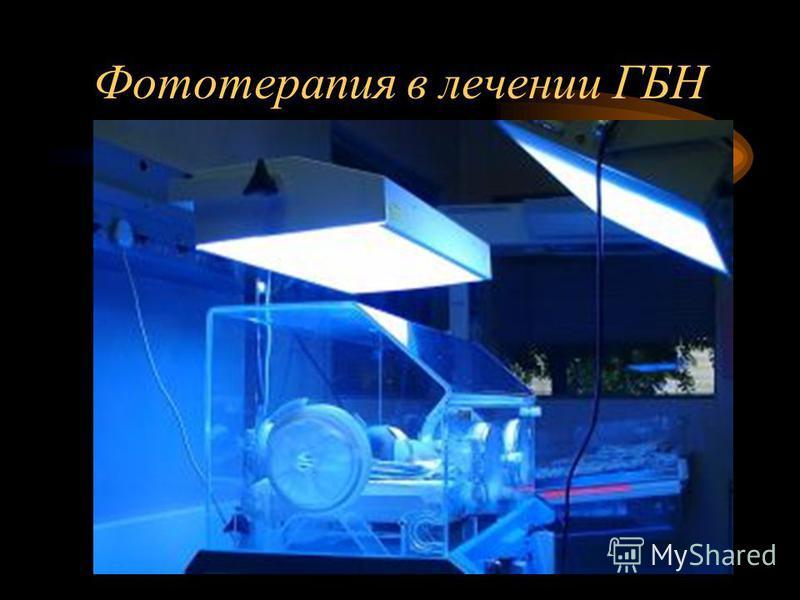 Фототерапия в лечении ГБН