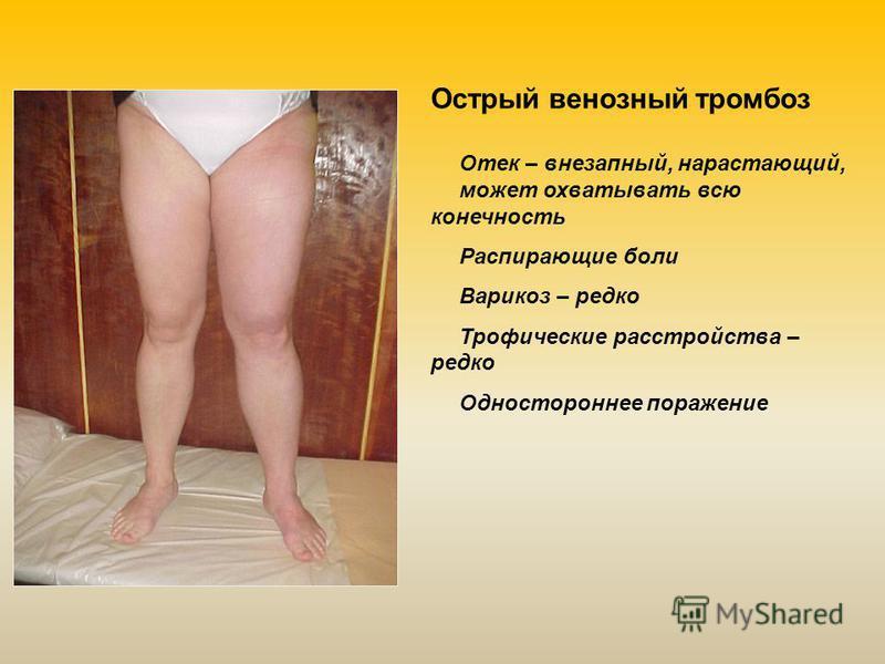 Отек – внезапный, нарастающий, может охватывать всю конечность Распирающие боли Варикоз – редко Трофические расстройства – редко Одностороннее поражение Острый венозный тромбоз