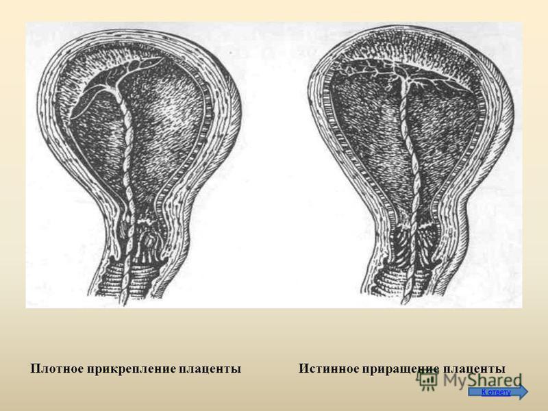 Плотное прикрепление плаценты Истинное приращение плаценты