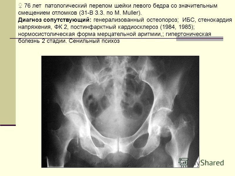 76 лет патологический перелом шейки левого бедра со значительным смещением отломков (31-В 3.3. по M. Muller). Диагноз сопутствующий: генерализованный остеопороз; ИБС, стенокардия напряжения, ФК 2, постинфарктный кардиосклероз (1984, 1985); нормосисто