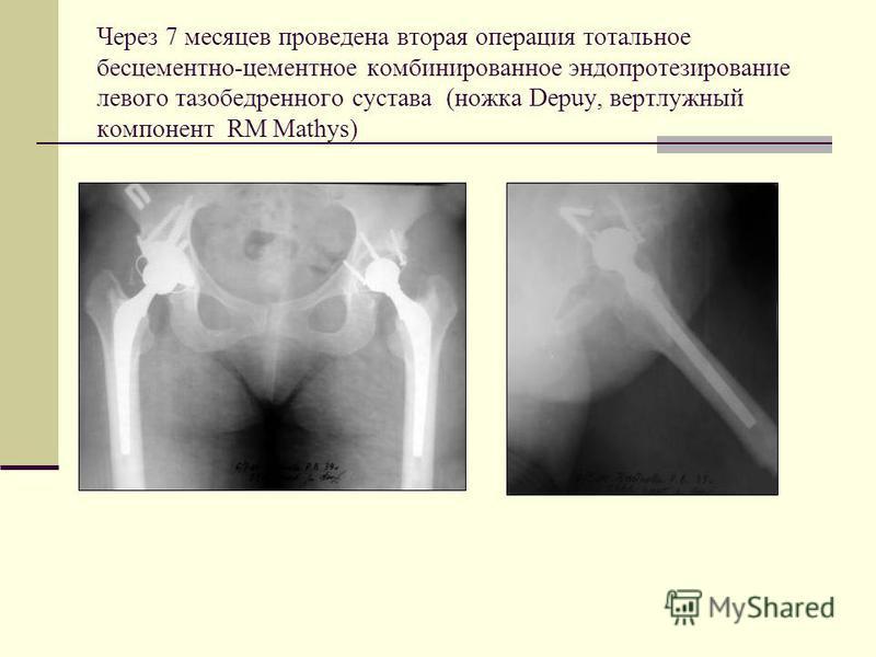 Через 7 месяцев проведена вторая операция тотальное бесцементно-цементное комбинированное эндопротезирование левого тазобедренного сустава (ножка Depuy, вертлужный компонент RM Mathys)