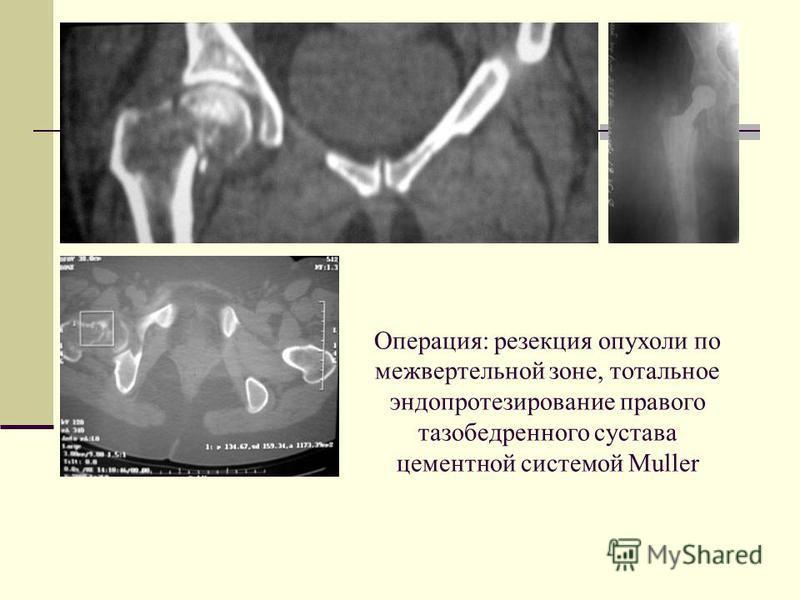 Операция: резекция опухоли по межвертельной зоне, тотальное эндопротезирование правого тазобедренного сустава цементной системой Muller