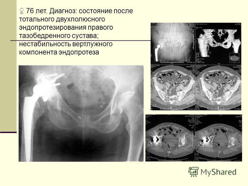 76 лет. Диагноз: состояние после тотального двухполюсного эндопротезирования правого тазобедренного сустава; нестабильность вертлужного компонента эндопротеза