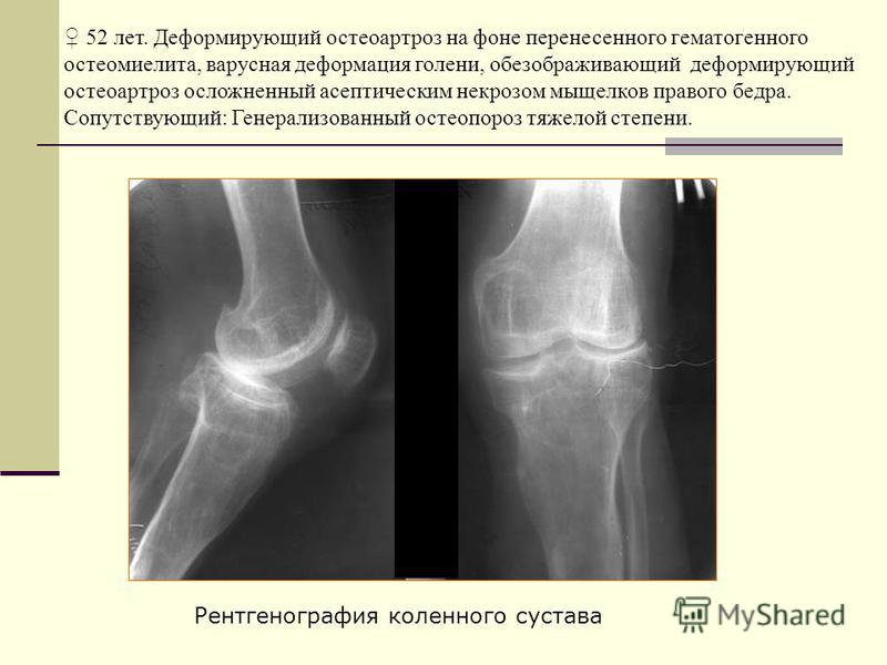52 лет. Деформирующий остеоартроз на фоне перенесенного гематогенного остеомиелита, варусная деформация голени, обезображивающий деформирующий остеоартроз осложненный асептическим некрозом мыщелков правого бедра. Сопутствующий: Генерализованный остео