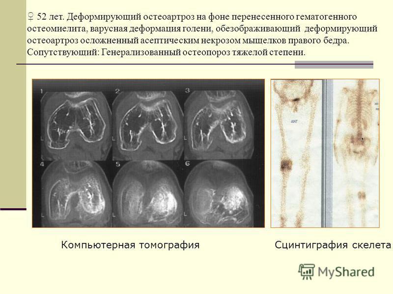 Сцинтиграфия скелета Компьютерная томография 52 лет. Деформирующий остеоартроз на фоне перенесенного гематогенного остеомиелита, варусная деформация голени, обезображивающий деформирующий остеоартроз осложненный асептическим некрозом мыщелков правого