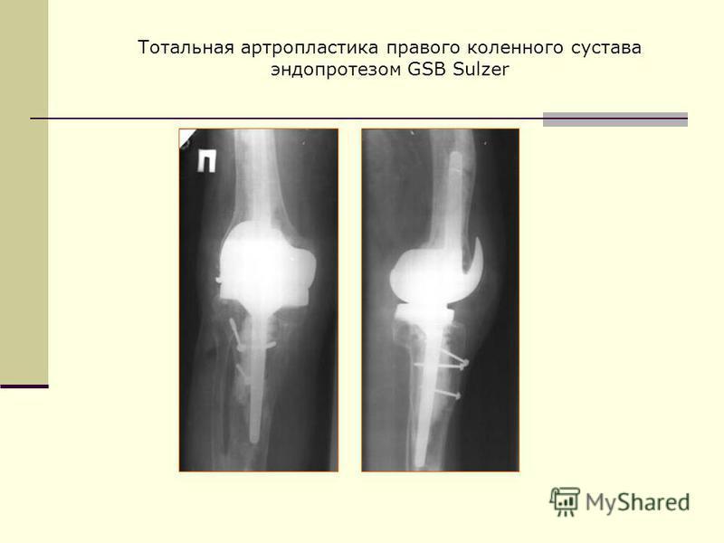 Тотальная артропластика правого коленного сустава эндопротезом GSB Sulzer