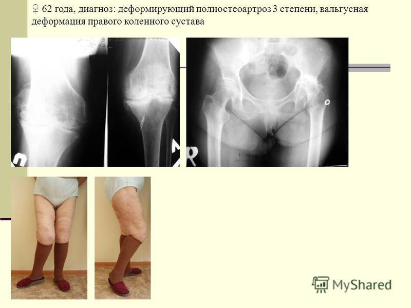 62 года, диагноз: деформирующий полиостеоартроз 3 степени, вальгусная деформация правого коленного сустава