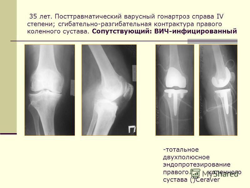 35 лет. Посттравматический варусный гонартроз справа IV степени; сгибательнойййй-разгибательная контрактура правого коленного сустава. Сопутствующий: ВИЧ-инфицированный -тотальное двухполюсное эндопротезирование правого коленного сустава ()Ceraver