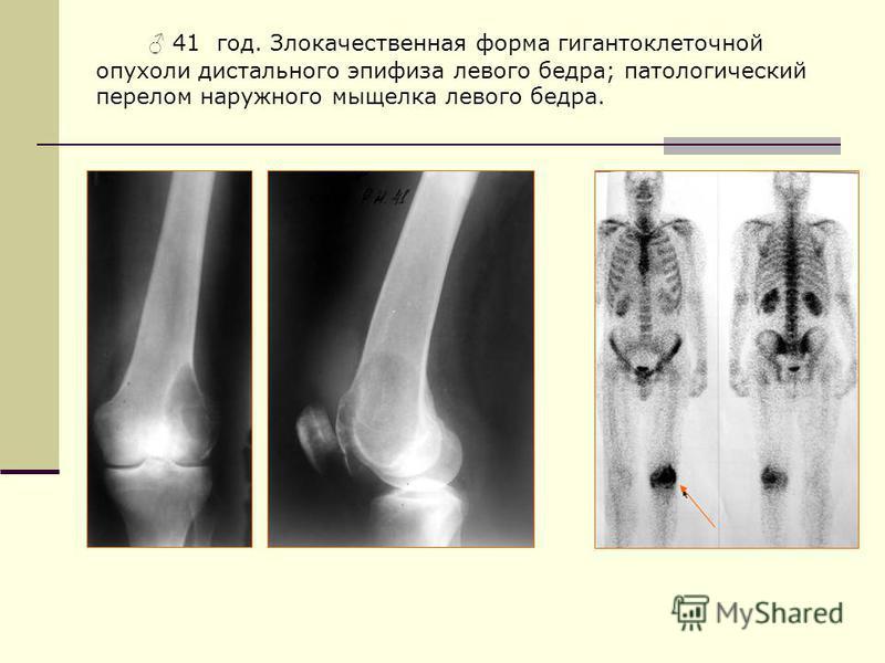 41 год. Злокачественная форма гигантоклеточной опухоли дистального эпифиза левого бедра; патологический перелом наружного мыщелка левого бедра.