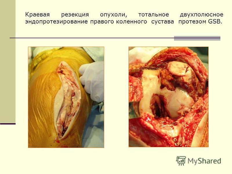 Краевая резекция опухоли, тотальное двухполюсное эндопротезирование правого коленного сустава протезом GSB.