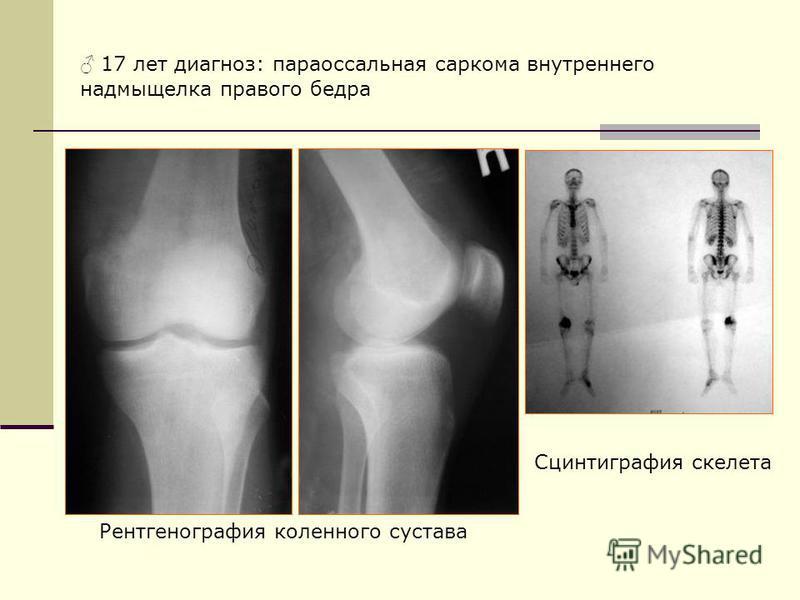 Сцинтиграфия скелета Рентгенография коленного сустава 17 лет диагноз: параоссальная саркома внутреннего надмыщелка правого бедра