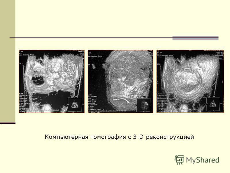 Компьютерная томография с 3-D реконструкцией