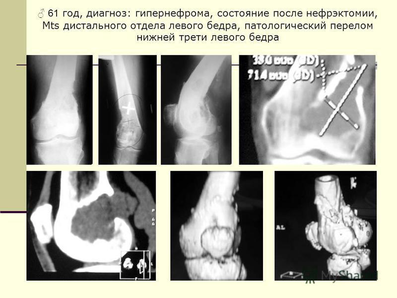 61 год, диагноз: гипернефрома, состояние после нефрэктомии, Mts дистального отдела левого бедра, патологический перелом нижней трети левого бедра