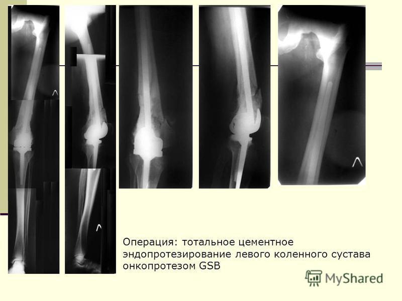 Операция: тотальное цементное эндопротезирование левого коленного сустава онкопротезом GSB