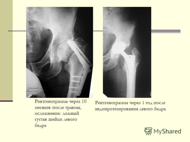 Рентгенограмма через 10 месяцев после травмы, осложнение: ложный сустав шейки левого бедра Рентгенограмма через 1 год после эндопротезирования левого бедра
