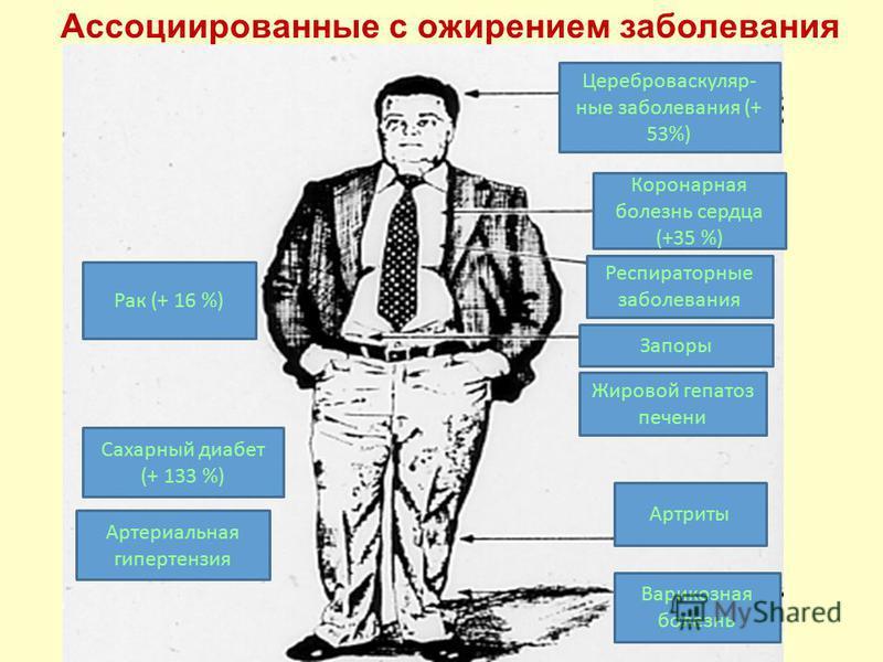 Ассоциированные с ожирением заболевания Рак (+ 16 %) Сахарный диабет (+ 133 %) Артериальная гипертензия Цереброваскуляр- ные заболевания (+ 53%) Коронарная болезнь сердца (+35 %) Респираторные заболевания Артриты Запоры Жировой гепатоз печени Варикоз