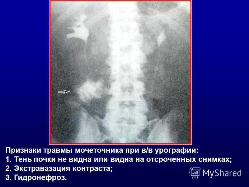 Признаки травмы мочеточника при в/в урографии: 1. Тень почки не видна или видна на отсроченных снимках; 2. Экстравазация контраста; 3. Гидронефроз.