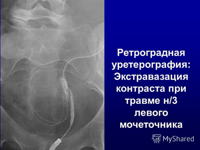 Ретроградная уретрография: Экстравазация контраста при травме н/3 левого мочеточника